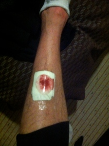 this is what a blade to the shin looks like!